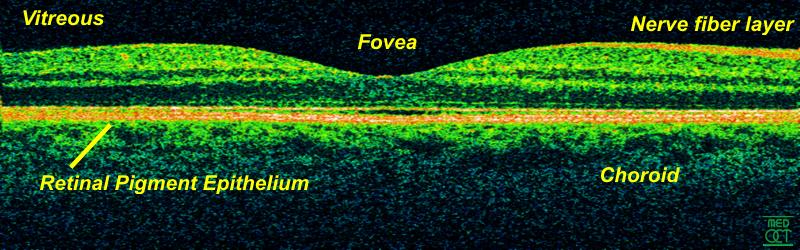 Retina-OCT800
